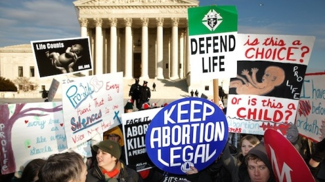 The Difference Between Pro-Life and Pro-Choice is Not So Simple